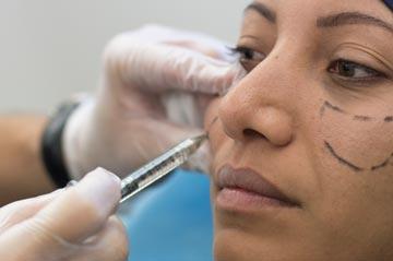 traitement des joues, pommettes et vallée des larmes